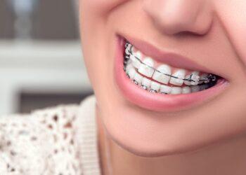 E' Importante Allineare I Denti