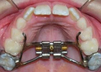 Apparecchio Ortodontico Ai Bambini In Crescita