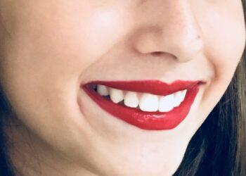 Ortodonzia: Connubio Tra Estetica E Salute